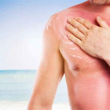 Can you have a massage with sunburn?
